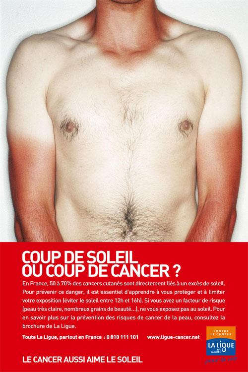 Cancer de la peau : 4 photos qui doivent alerter Medisite